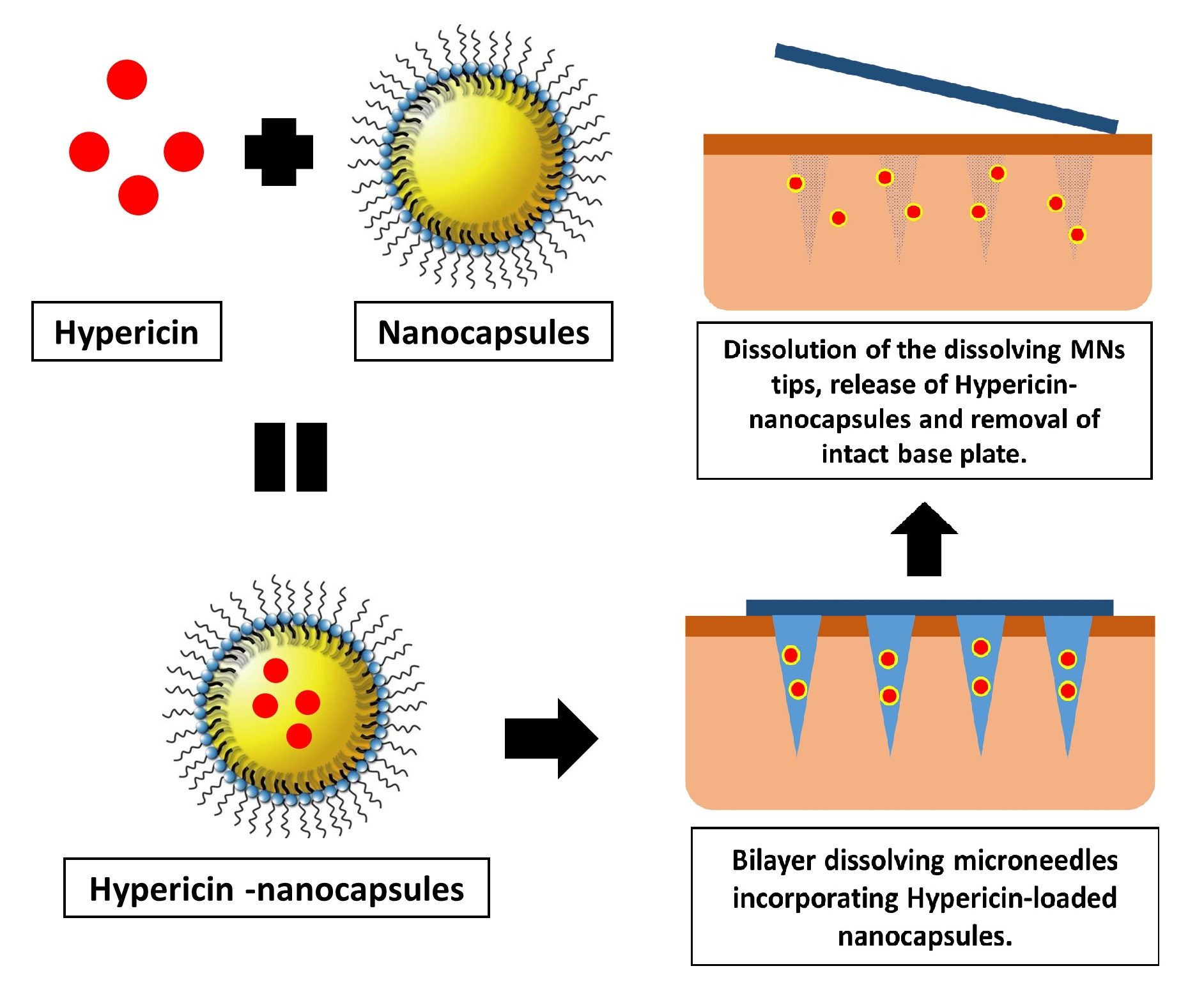 Bilayer Dissolving Microneedles Incorporating Hypericin-Loaded Nanocapsules For Improved Localised Photodynamic Therapy